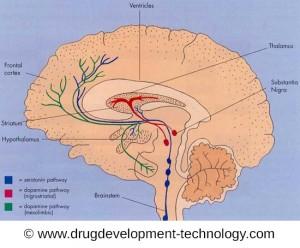Parkinson beginnt mit der Schädigung der Schwarzen Substanz. Hier sterben Nervenzellen ab.
